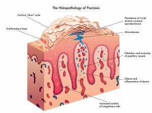 Les causes du psoriasis