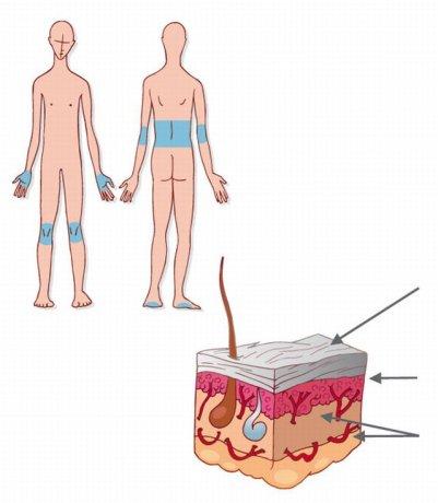Les types de psoriasis