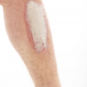 Le psoriasis des jambes