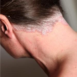 Le psoriasis du cuir chevelu
