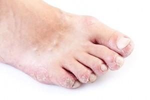 Le psoriasis du pied