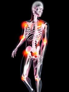 Psoriasis et rhumatisme