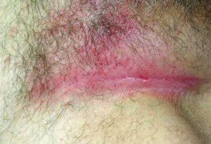 Psoriasis inversé autour de l'anus